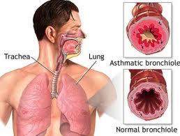 asthma breathing